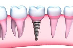Dental Implants Bala Cynwyd, PA