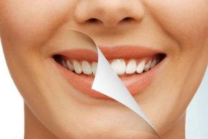 Teeth Whitening Bala Cynwyd, PA