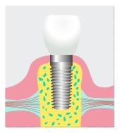 implants2